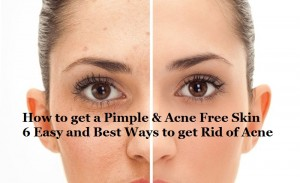 How to get Rid of Acne and Pimples – 6 Easy & Best Homemade Remedies to get Acne Free Skin