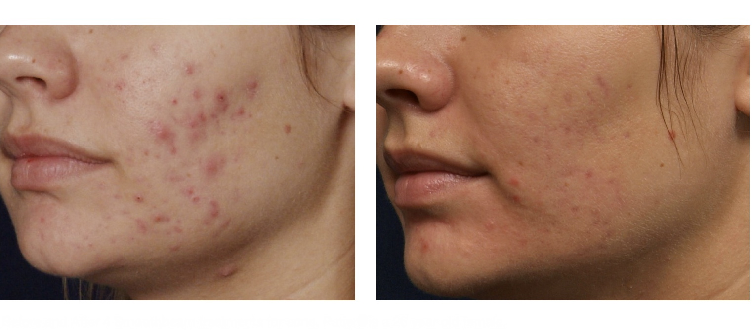 What Is The Best Way To Treat Acne Naturally