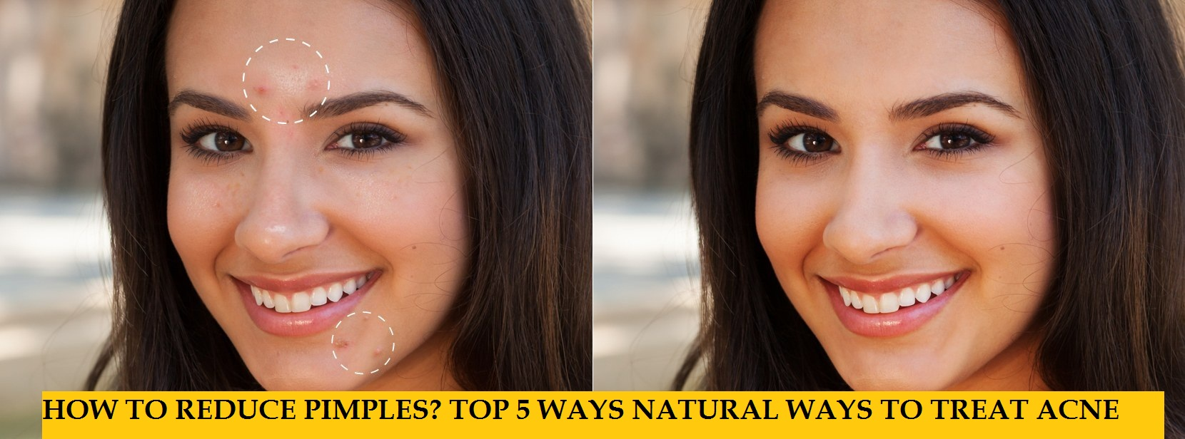 5 best ways to treat acne-pimples naturally