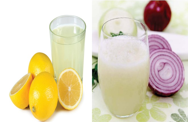 Onion juice or lemon juice