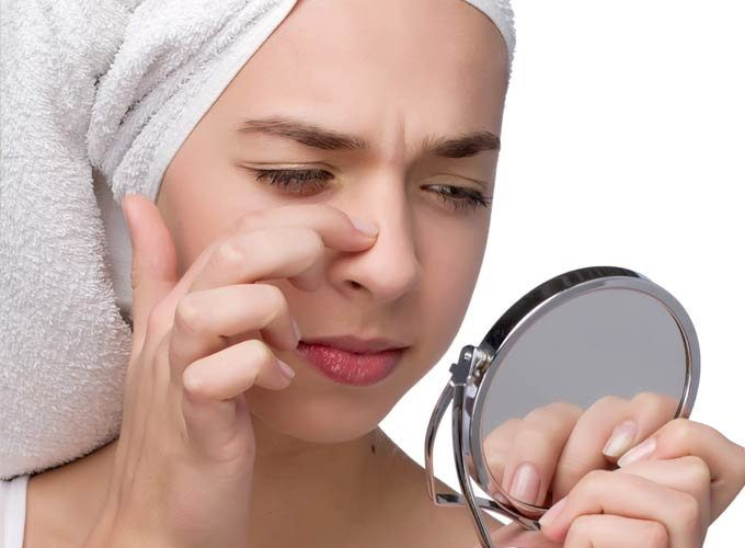 Easy & Best Homemade Remedies to Remove Blackheads Quickly