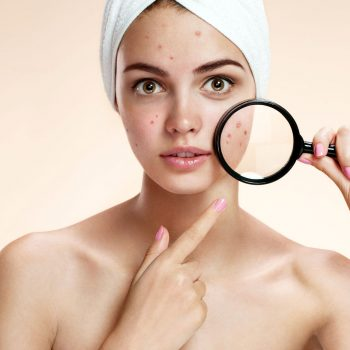 How to Make DIY Acne Masks To Treat Skin Problems