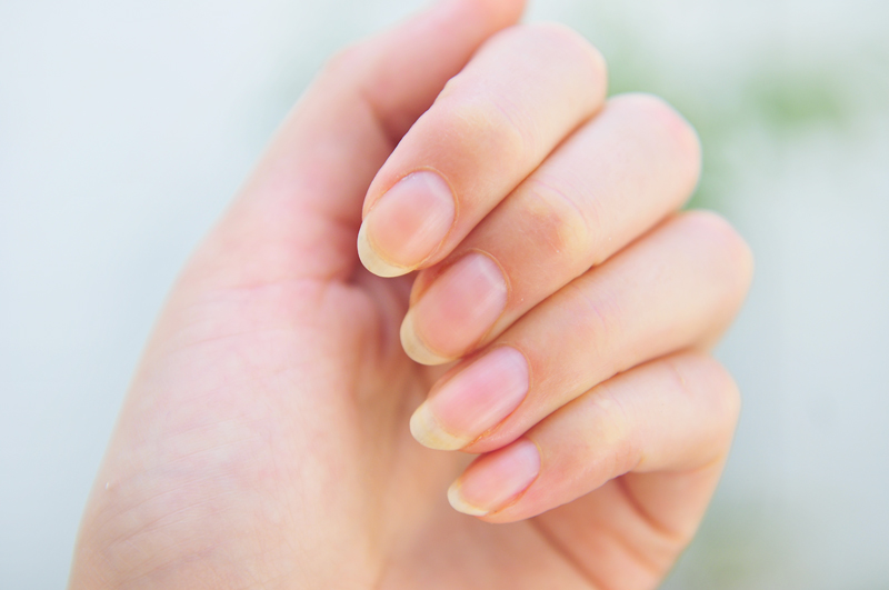 10 Surprising & Interesting Nail Health Facts You Must have to Know ...