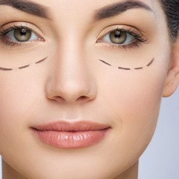 10 Most Effective Ways To Prevent And Hide Dark Circles
