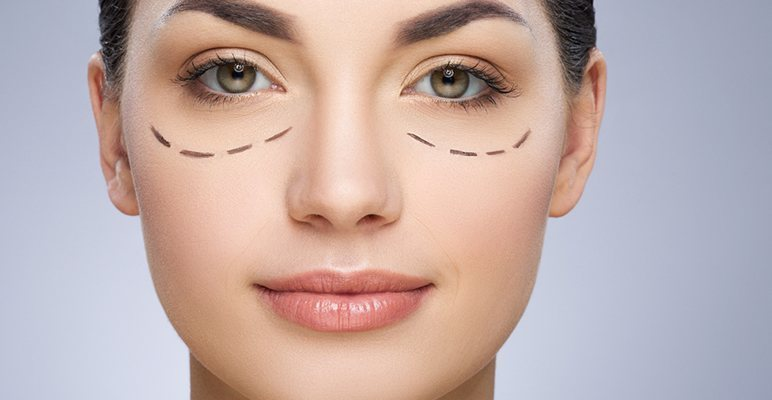 10 Most Effective Ways To Prevent And Hide Dark Circles (3)