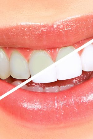 Teeth Bleaching Myths And Misperceptions (2)