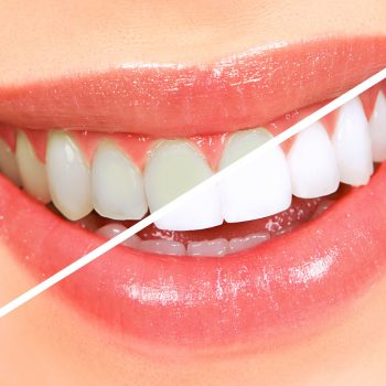 Teeth Bleaching Myths And Misperceptions You Must Know